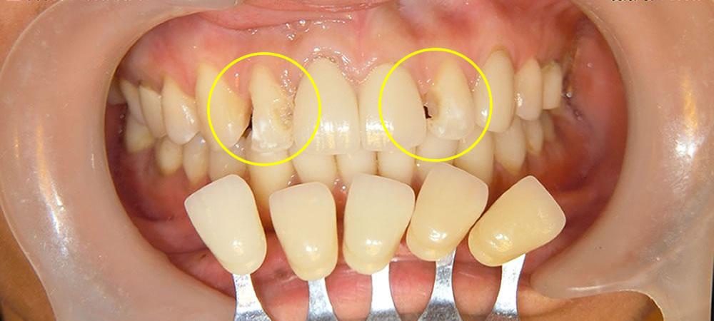ラミネートベニアによる前歯の審美修復治療