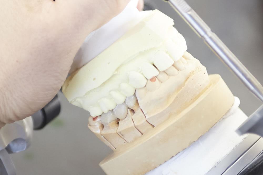 入れ歯への対応