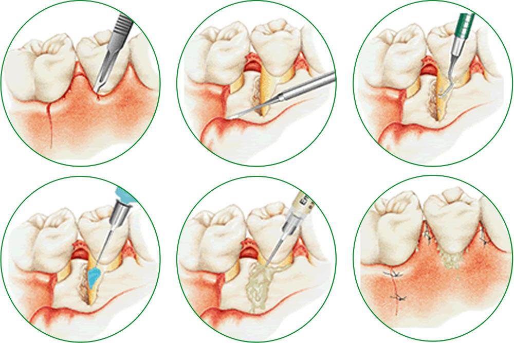 歯周再生療法エムドゲイン